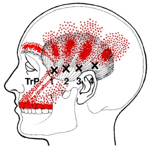 temporalis-trigger-points