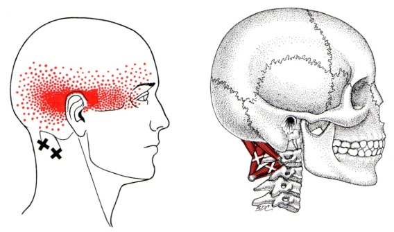 Suboccipital Group
